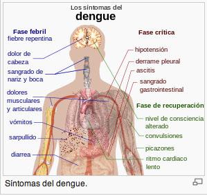 sintomasdengue